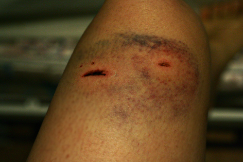 Dog Bite Wounds